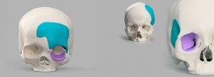 Patient-Specific Prostheses for face and cranium